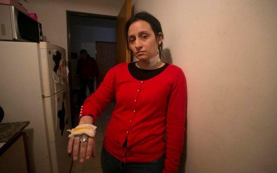 Una joven quedó a dos centímetros de la muerte y denuncia desamparo
