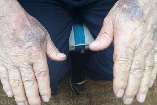 El jubilado italiano fue golpeado a piñas por 5.000 pesos