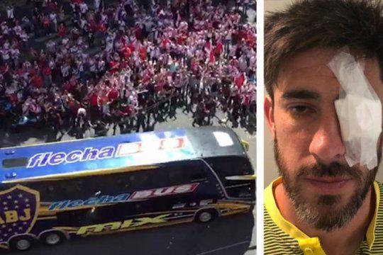 dia de locos: declaro pablo perez y boca pide la copa libertadores mas casi 15 millones de resarcimiento