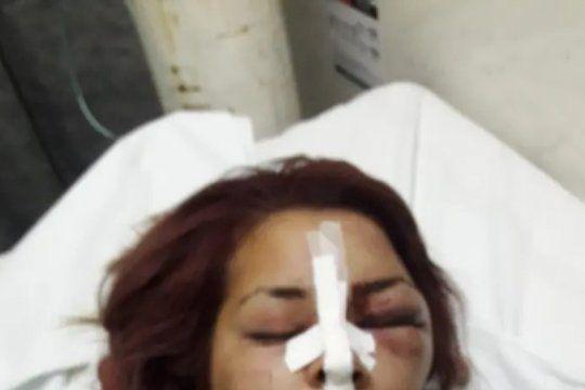 la historia de priscila: la joven que pudo haber terminado como fernando baez al recibir una brutal golpiza