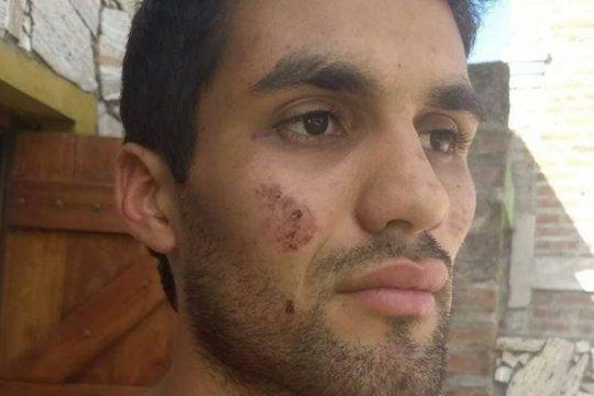 represion policial en rauch: detenidos y heridos por balas de goma en una fiesta tradicional