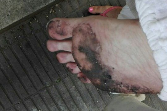 ola de calor en la plata: se le derritio la ojota y quedo pegada en el asfalto