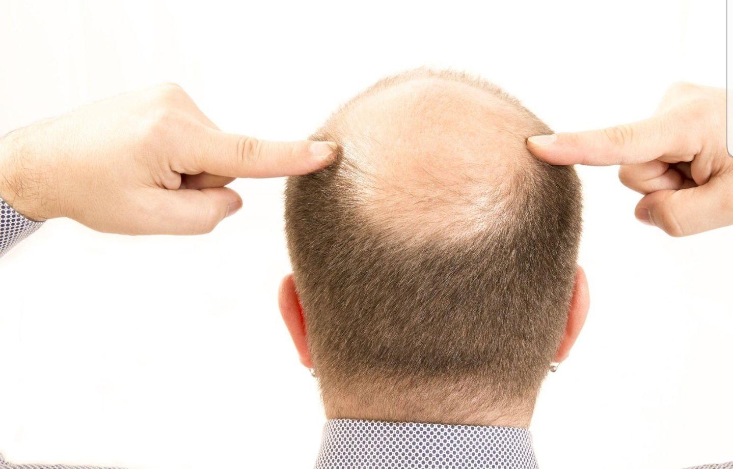La piel pelada de la cabeza sufre el frío y otras inclemencias aún más que otras zonas del cuerpo