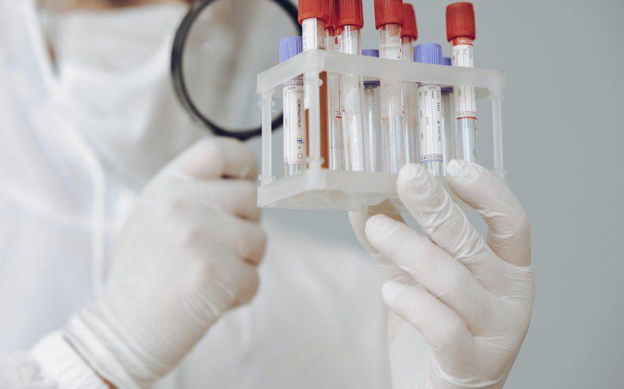 Test de Coronavirus: es uno de los indicadores de circulación del virus en la sociedad.