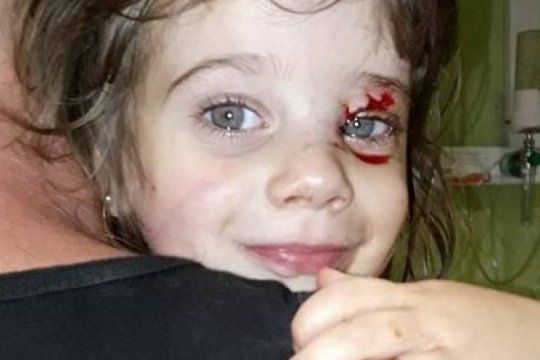 un perro ataco brutalmente a una nena de dos anos en rojas: ?no perdio el ojo de milagro?