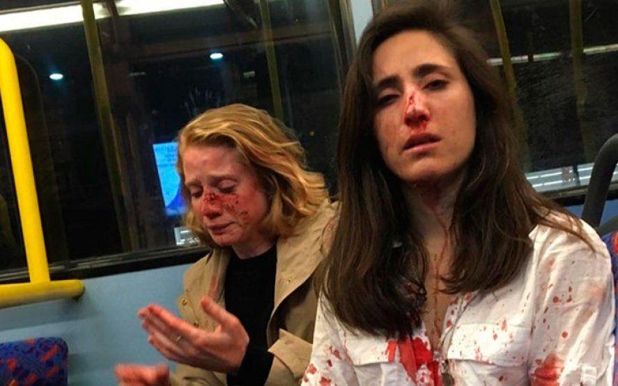 Ataque homofóbico: golpean brutalmente a una pareja de mujeres en Londres