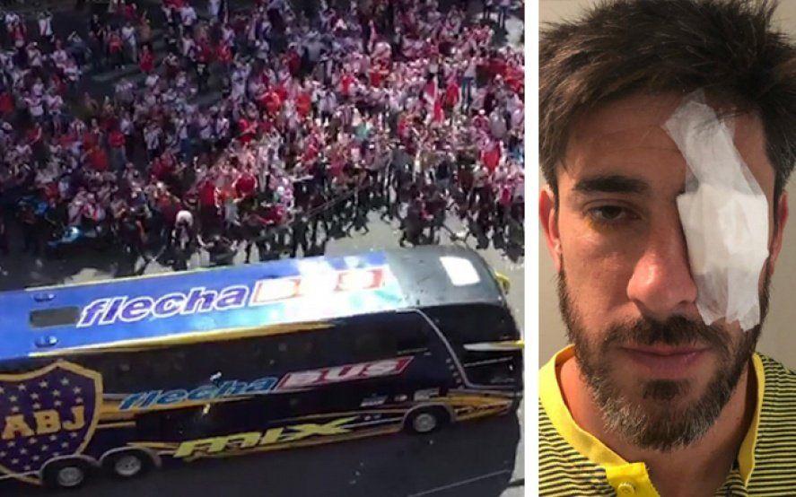 Día de locos: declaró Pablo Pérez y Boca pide la Copa Libertadores más casi 15 millones de resarcimiento