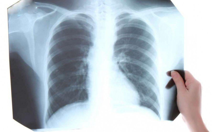 Murió una mujer por tuberculosis en Quilmes: cómo prevenir y tratar la enfermedad