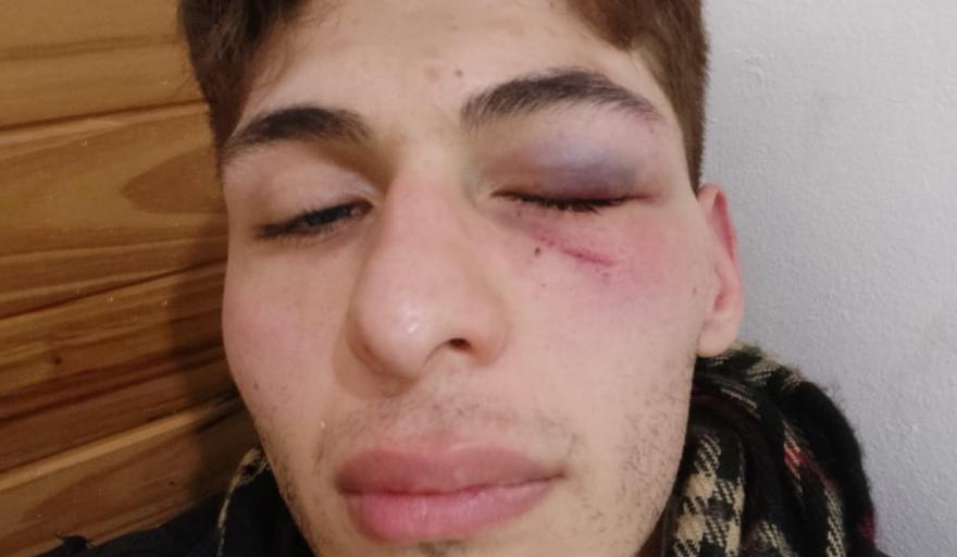 brutal ataque a un joven no binario con sindrome de asperger