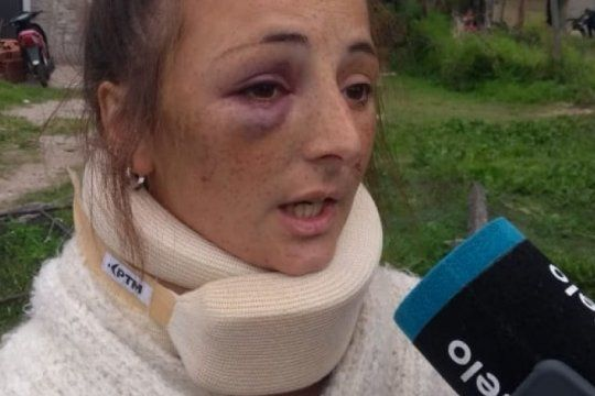 habla la joven que salio a festejar su cumpleanos y una boxeadora le desfiguro el rostro