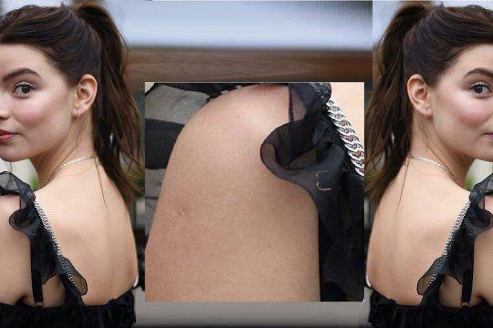 La actriz de Gambito de Dama, Anya Taulor-Joy tiene la marca de la vacuna BCG en el brazo.
