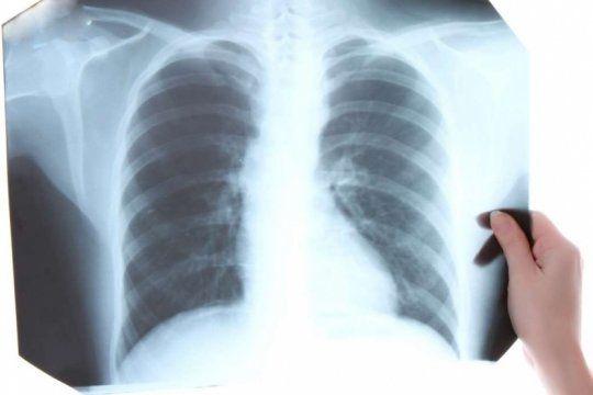 tuberculosis: sintomas, tratamiento y prevencion de una enfermedad que afecta a mas de 5 mil bonaerenses al ano