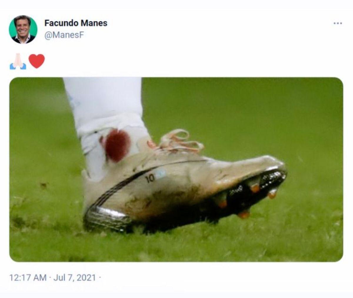 """Facundo Manes pasó del """"asesinato"""" a la alabanza del ídolo"""