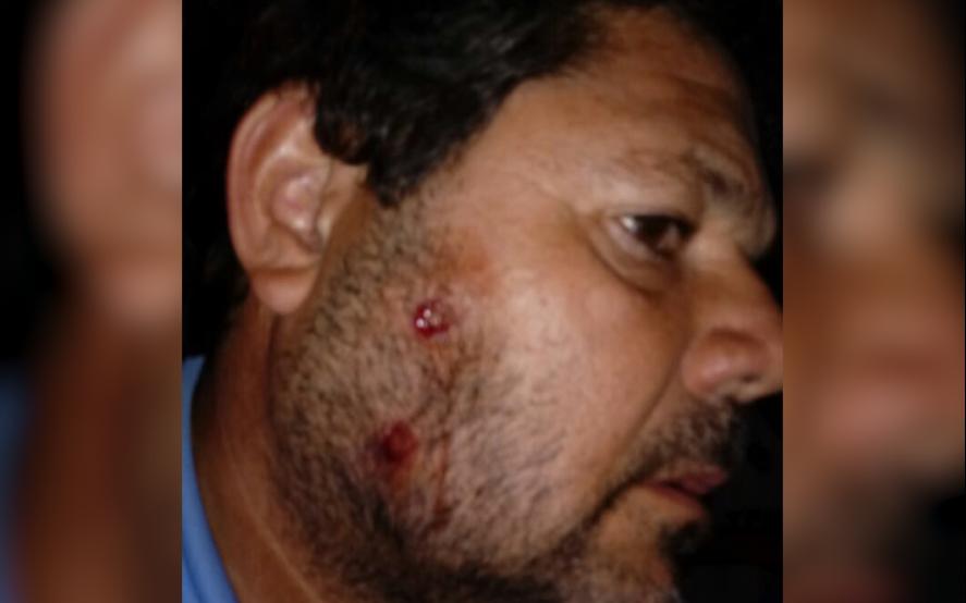 Violencia policial: la salvaje represión a hinchas que APREVIDE no quiere que veas