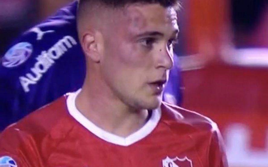 Así le quedó la cara a Bustos: mirá las peores patadas que sufrió el jugador del rojo en el fútbol argentino