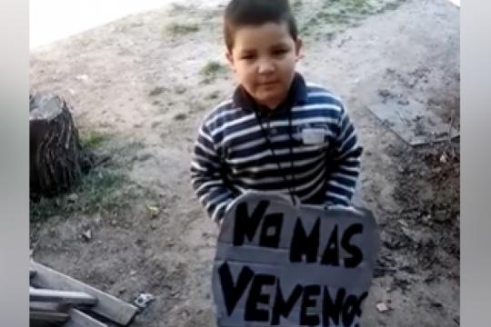 tiene cinco anos, pero su edad osea es de tres debido a la contaminacion del agua