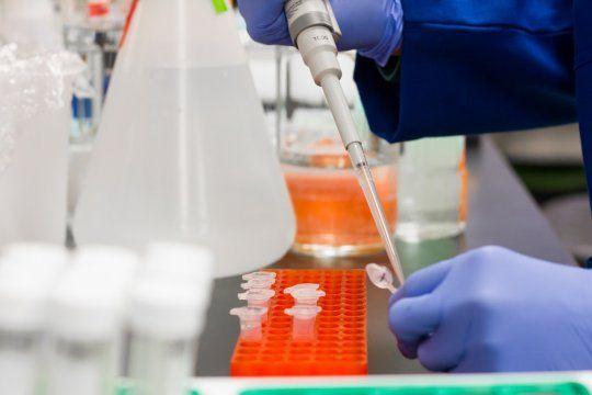 Reporte diario de Coronavirus en Argentina: 8.185 nuevos casos y 425 muertes tras una actualización de registros.