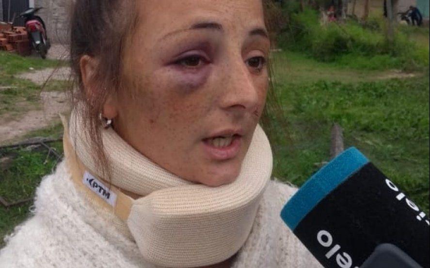 Habla la joven que salió a festejar su cumpleaños y una boxeadora le desfiguró el rostro