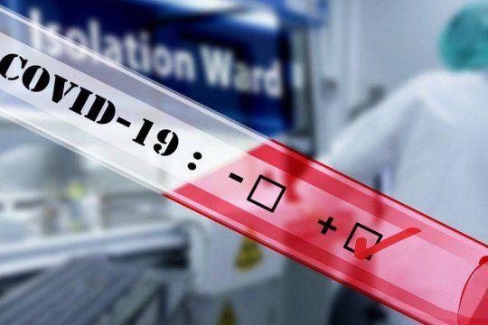 covid-19: aprueban un nuevo test de diagnostico rapido