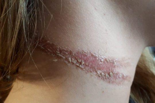 video: violento arrebato de un motochorro dejo a una joven herida y en shock en pergamino