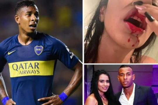 ridicula defensa de villa: burlando pedira la detencion del delantero de boca acusado de violencia de genero