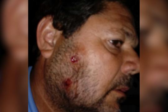 violencia policial: la salvaje represion a hinchas que aprevide no quiere que veas