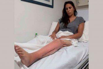 Romina fue baleada en una pierna y a siete años del hecho no tiene el alta médica