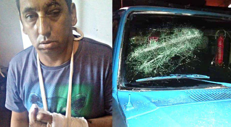 Lanús: le cortaron dos dedos a militante del Frente de Todos
