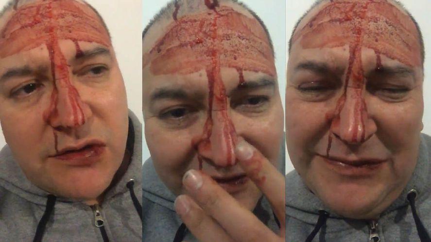 Apareció el video de la golpiza a Leo García y hay contradicciones en su relato