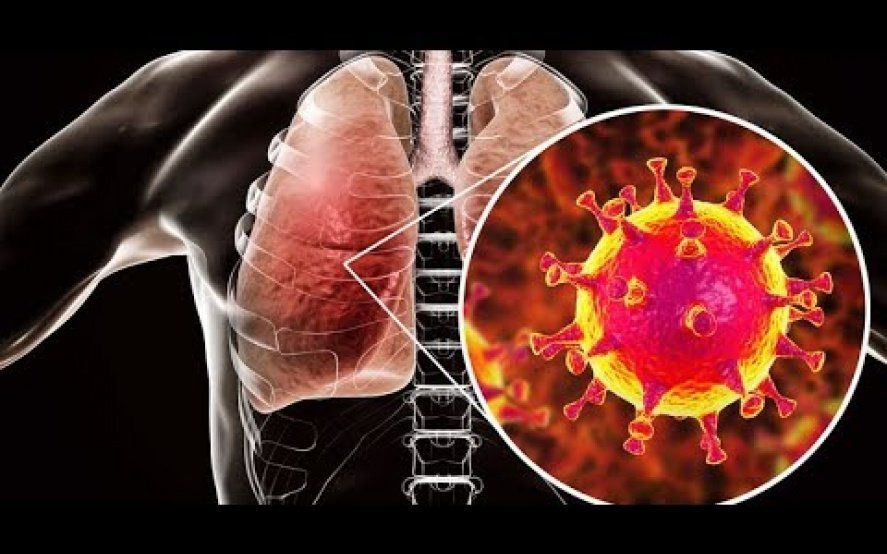¿Por qué el sistema inmune no puede contra el coronavirus?