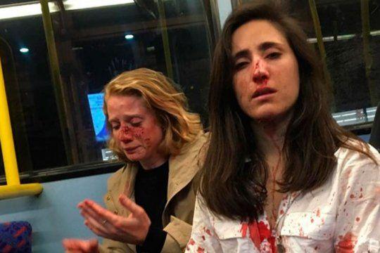ataque homofobico: golpean brutalmente a una pareja de mujeres en londres