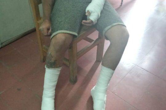 El albañil fue atendido en el Hospital de Gonnet