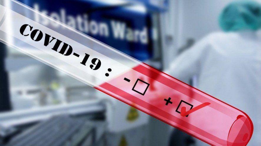 Covid-19: aprueban un nuevo test de diagnóstico rápido